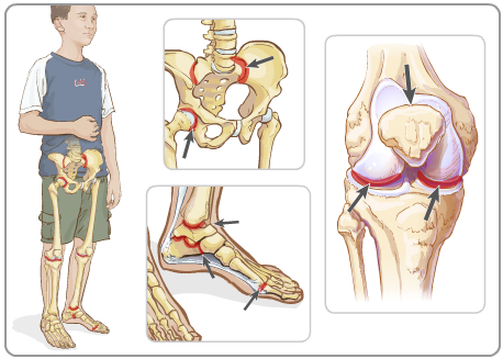 Joints most commonly affected by ERA Credit: Hospital for Sick Children:  http://www.aboutkidshealth.ca/En/HealthAZ/ConditionsandDiseases/InflammatoryConditions/Pages/Juvenile-Enthesitis-Related-Arthritis-ERA.aspx