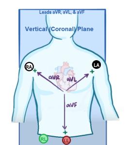 ECGCoronal aV